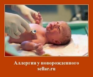 Аллергия у новорожденных и у детей постарше: причины, группы и виды, лечение и профилактика болезни