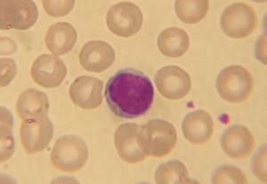 Базофилы повышены у ребёнка: 2 причины, 2 способа определения, норма базофилов в крови