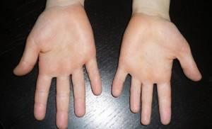 Брахидактилия: 5 вариантов патологии и обзор методик лечения