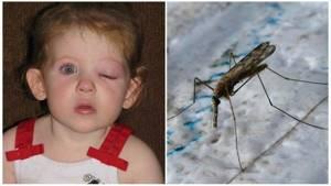 Чем для детских глаз опасны укусы комаров: глазной дирофилляриоз, лечение и профилактика