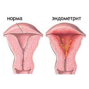Что такое эндометрит, как проявляется болезнь и как ее лечить