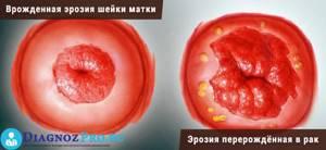 Что такое кольпоскопия при эрозии шейки матки