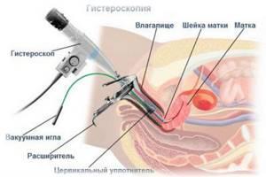 Что такое офисная гистероскопия и как она проводится
