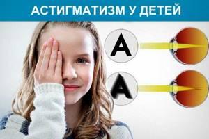 Дальнозоркий астигматизм у детей: 3 причины и 3 степени, 5 способов диагностики и лечения