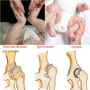 Дисплазия тазобедренных суставов у детей: лечение у новорожденных, грудничков, детей до года