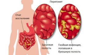 Дивертикул меккеля: врач-гастроэнтеролог о выявлении скрытой проблемы через анализ 5 осложнений заболевания