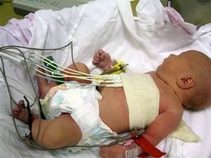 Дыхательная аритмия у детей: причины, симптомы, лечение, диагностика, коррекция образа жизни