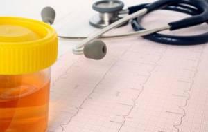 Эритроциты в моче у ребенка: 16 причин появления, норма и отклонение