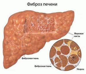 Фиброз печени: 7 основных способов диагностики у детей