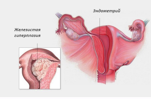 Формы железистой гиперплазии эндометрия и особенности лечения