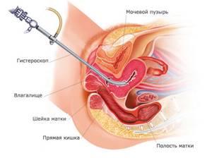 Как проводится полипэктомия цервикального канала