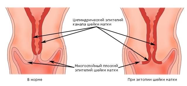 Как влияет эрозия шейки матки на беременность