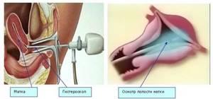 Какие свечи для лечения эндометрита используют в гинекологии