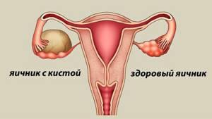 Какова норма СА 125 при кисте яичника