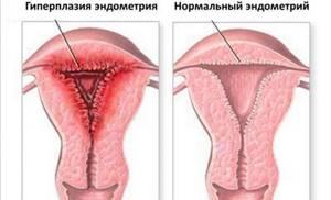 Какой должна быть толщина эндометрия при беременности