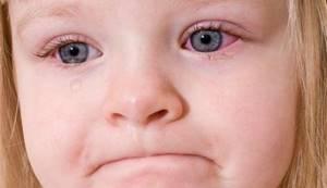 Капли от конъюнктивита для детей: обзор 9 лучших препаратов от детского офтальмолога