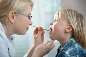 Лакунарная ангина у детей: 5 этапов лечения и советы от педиатра