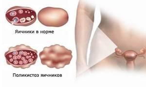 Лечение Дюфастоном при поликистозе яичников
