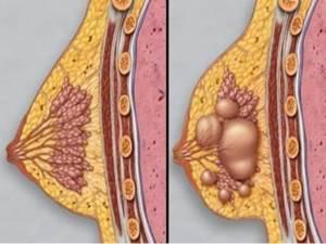 Месячные прошли, а грудь болит: в чем причина