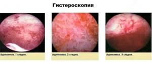 Можно ли забеременеть с аденомиозом