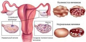 Нарушение менструального цикла у подростков: главные причины и способы лечения