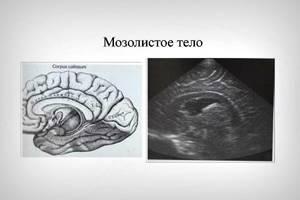 Нейросонография головного мозга новорожденных: 6 поводов для назначения, расшифровка результатов