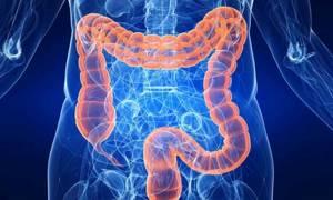 Мегаколон кишечника – что это такое, причины, диагностика, лечение