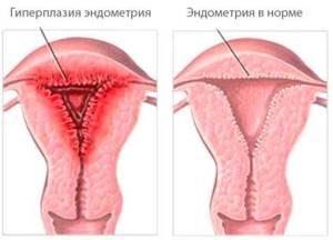 Особенности лечения дюфастоном и норколутом при гиперплазии эндометрия