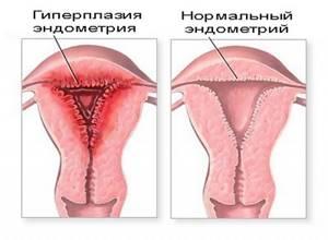 Особенности лечения гиперплазии эндометрия после выскабливания