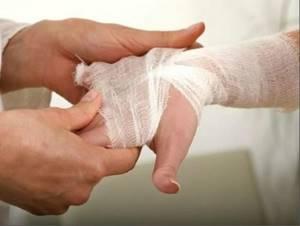 Ожог у ребенка: первая помощь при одоге утюгом, кипятком, химическом, лечение, мази