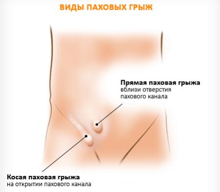 Паховая грыжа у ребенка: 7 симптомов, лечение у мальчиков и девочек