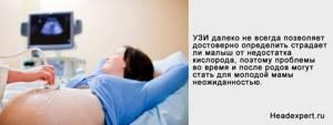 Перинатальная энцефалопатия: 4 формы и ведущих причины, 6 ключевых синдромов и врачебный обзор методов лечения и профилактики