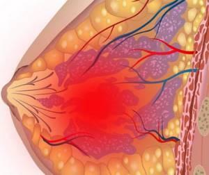 Почему болят молочные железы перед месячными: ПМС или патология