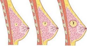 Появление выделений из молочных желез: причины и методы лечения