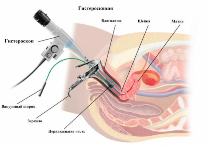 Причины безболезненных кровянистых выделений в середине цикла