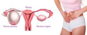 Причины боли в яичниках после месячных