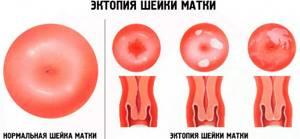 Причины появления выделений при эрозии шейки матки