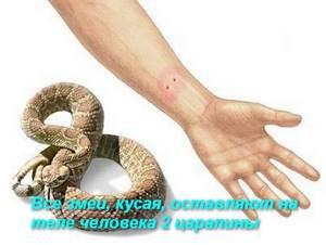 Ребенка укусила змея: 4 этапа оказания первой помощи