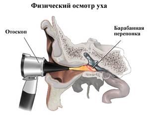 Ребенок засунул в ухо ватную палочку, бусинку, пластилин: 4 правила первой помощи от лор-врача
