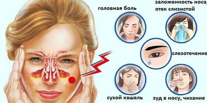 Ринит у детей симптомы и лечение: 3 основные причины ринита