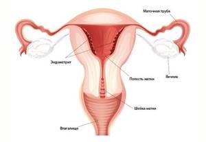 Симптомы и лечение острого эндометрита