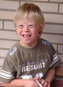 Синдром дауна: 3 обязательных признака и 8 сопутствующих проблем детей с трисомией по 21-й хромосоме