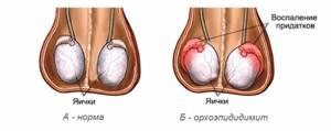 Синдром острой мошонки у мальчиков: 7 острых заболеваний, лечение и советы врача родителям