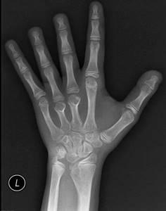 Синдром шерешевского тёрнера : 13 признаков генетического синдрома