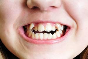 Смена зубов у детей: 5 советов педиатра и 3 правила ухода за зубами