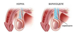 Варикоцеле у детей: симптомы у новорожденных мальчиков, нужно ли лечить ребенка