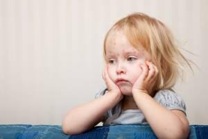 Ветрянка у детей: первые признаки и 6 главных симптомов, лечение, осложнения, прививка