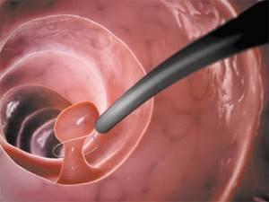 Влияние гистероскопии на менструальный цикл: возможные изменения