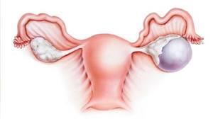 Все о дермоидной кисте яичника: лечение, причины, симптомы