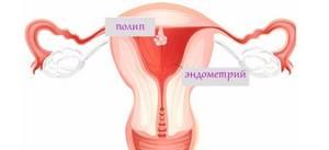 Все о полипах эндометрия: причины, симптомы, лечение